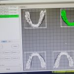 Once the tooth movement is prescribed and the number of aligners needed.  The 3D models are sent to the printer