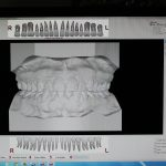 Example of Scanned dental impressions made into computer generated 3D models
