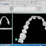 Using software, the teeth can be moved at the Doctor's discretion and in increments that Doctor feels  is appropriate for this patient.